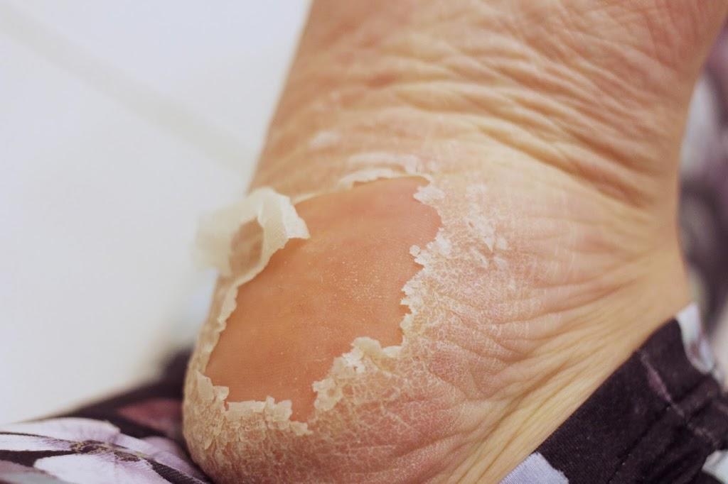 Jalat pehmoisiksi sukat jalassa - Glitz & Glam