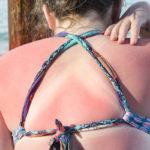 Auringossa palanutta ihoa voi rauhoittaa kotikonstein. Mutta jos iho kärähtää pahasti, on syytä hakeutua lääkäriin.