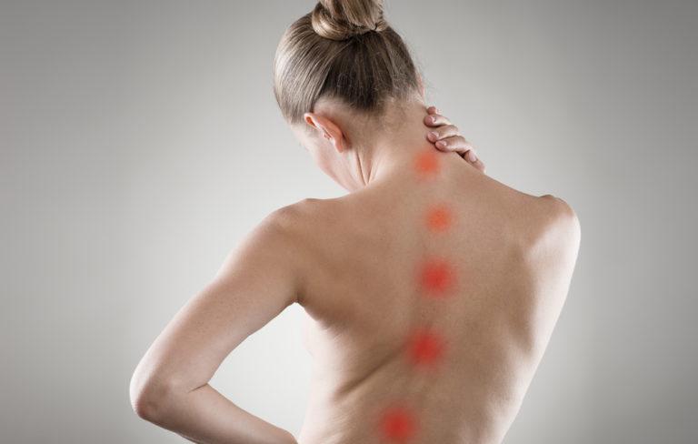 Osteoporoosi, osteoporoosin oireet, miten osteoporoosi oireilee