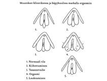 Erilaisia naisten orgasmeja